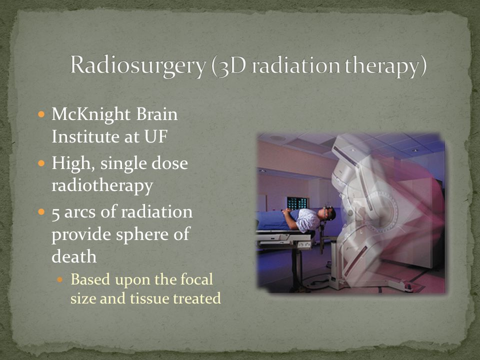 Radiosurgery (3D radiation therapy)