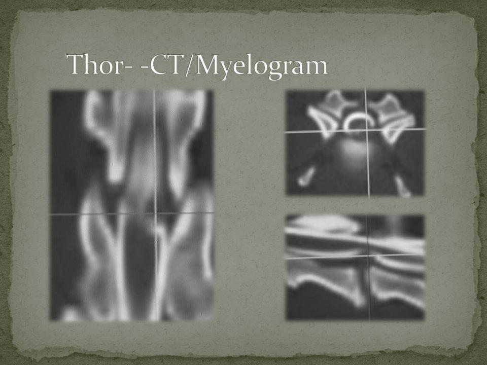Thor- -CT/Myelogram