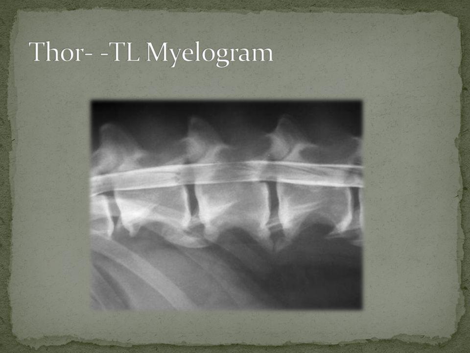 Thor- -TL Myelogram
