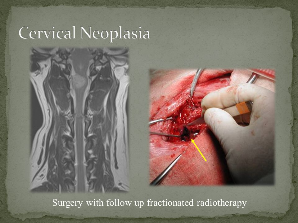 Cervical Neoplasia Surgery with follow up fractionated radiotherapy