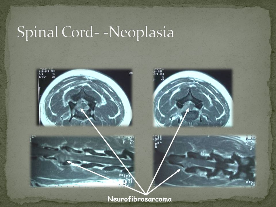 Spinal Cord- -Neoplasia