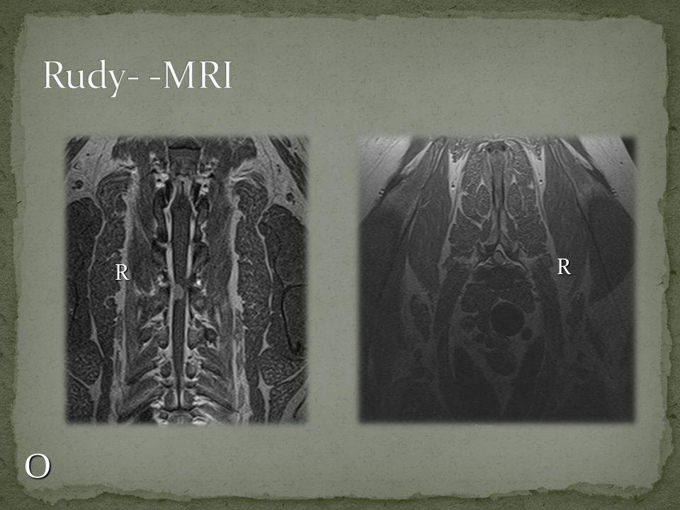 Rudy- -MRI R R O