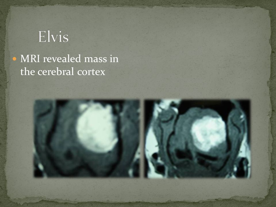Elvis MRI revealed mass in the cerebral cortex