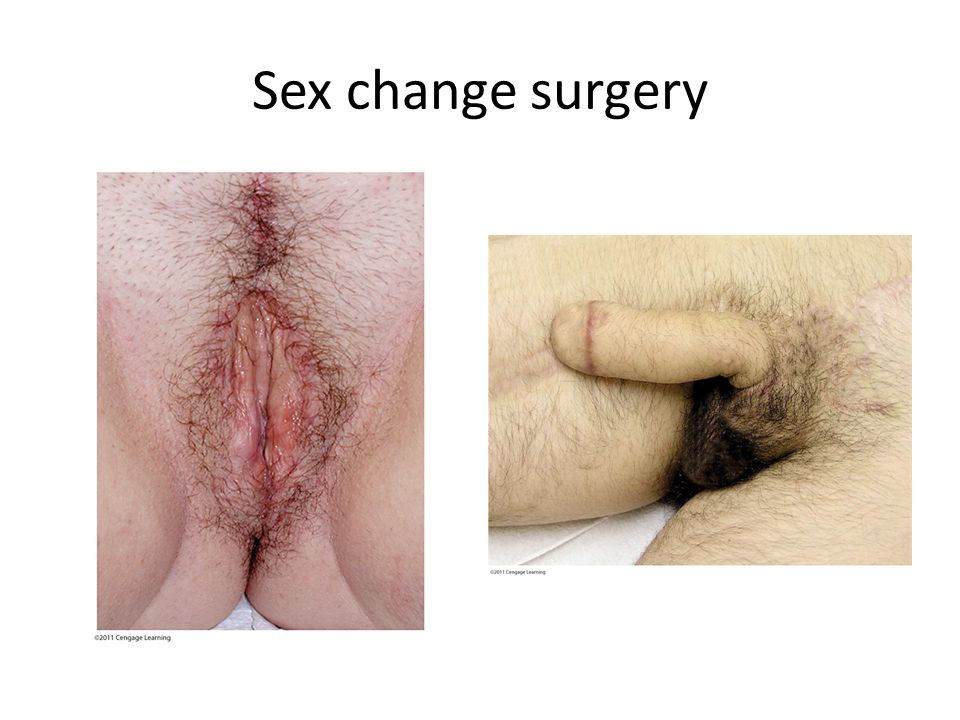 Sex change surgery Penis inverted to form vagina,