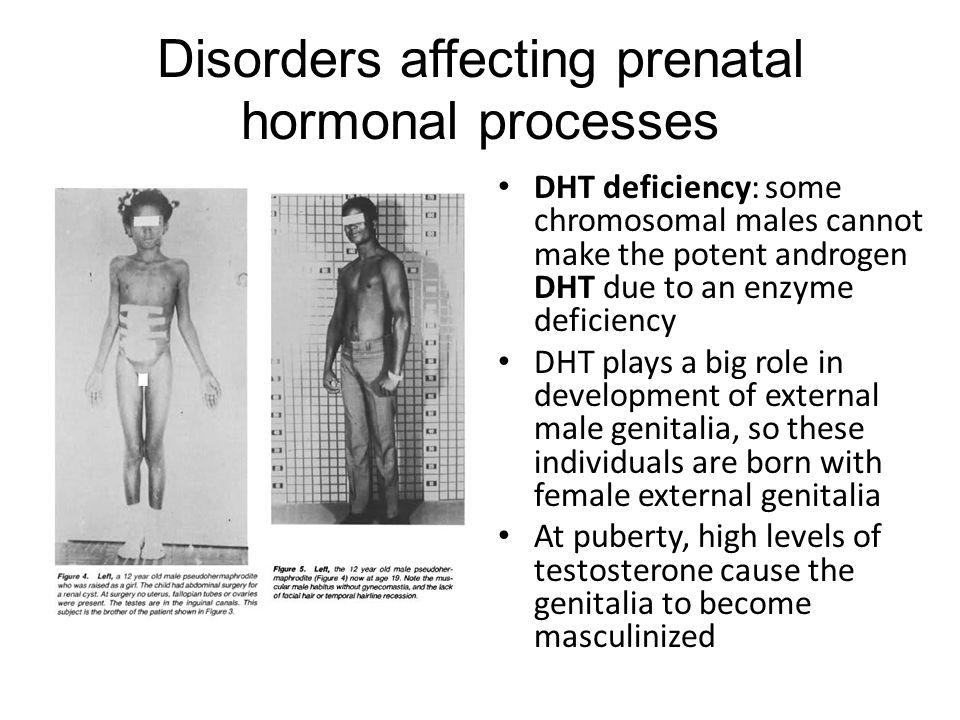 Disorders affecting prenatal hormonal processes