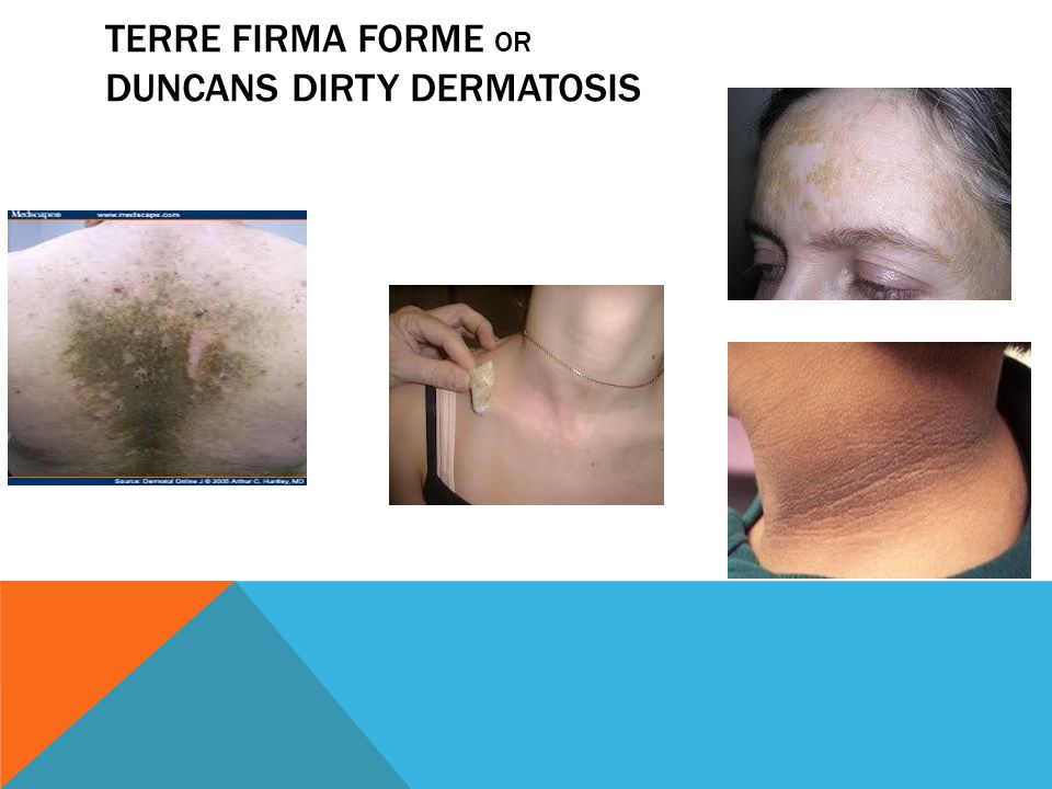 Terre Firma Forme or Duncans Dirty Dermatosis