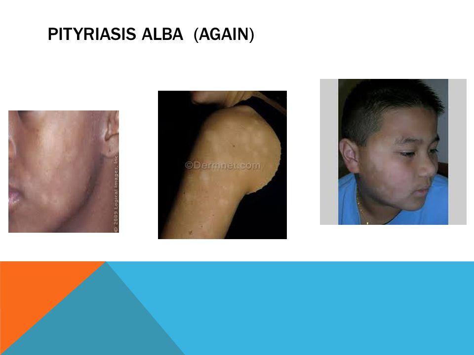 Pityriasis Alba (again)