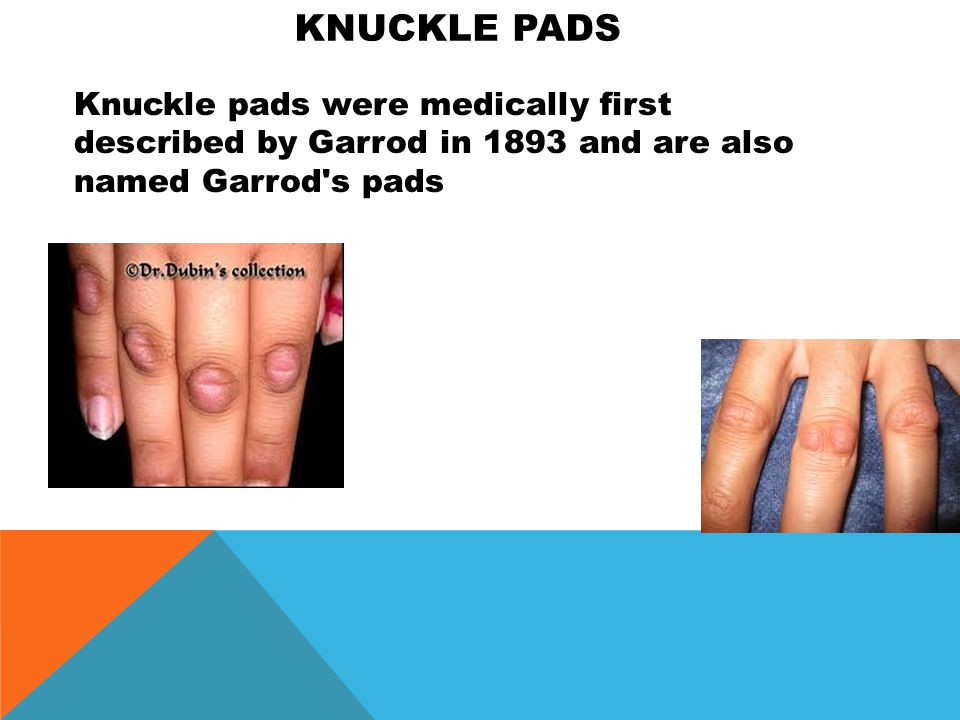 Knuckle PADS Knuckle pads were medically first described by Garrod in 1893 and are also named Garrod s pads.