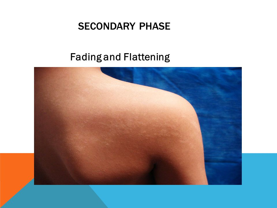 Secondary Phase Fading and Flattening