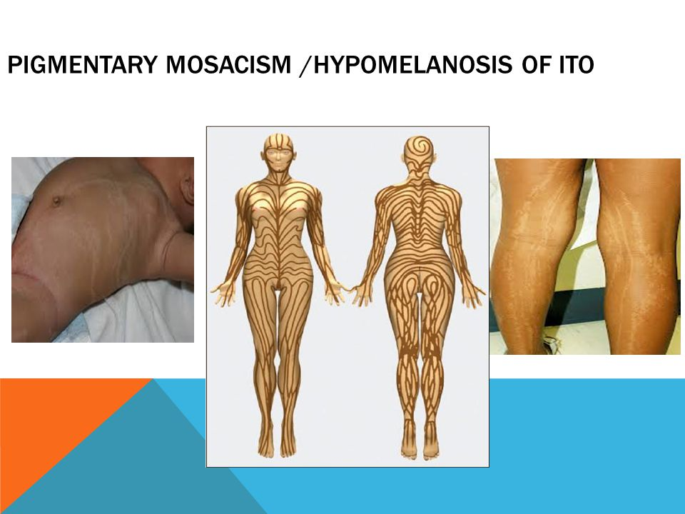 Pigmentary Mosacism /Hypomelanosis of ito