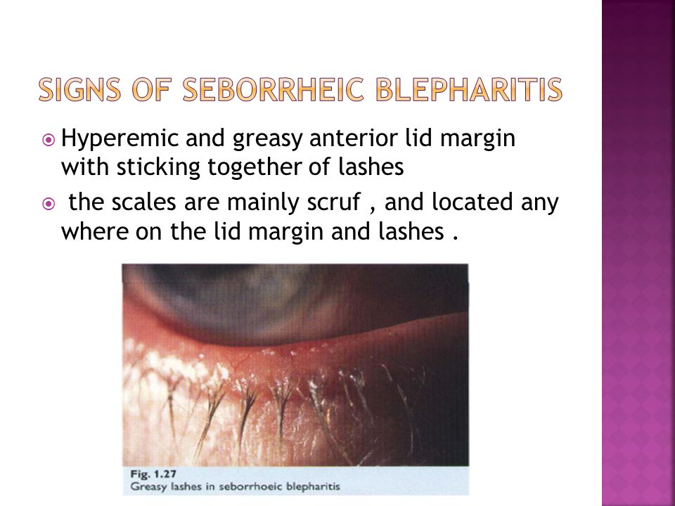 Blepharitis Types, Diagnosis & Managment  Ppt Download. Best Software For Flowcharts. Huntington National Bank Online. Hormone Replacement Therapy Tampa. Data Analytics Strategy Bmw Repair Manual Pdf. Telephone Systems For Small Businesses In South Africa. Eligibility For Roth Ira Repeat Dui Offenders. Cumberland Diagnostic And Treatment Center. Texas Christian School Cna Classes Lincoln Ne