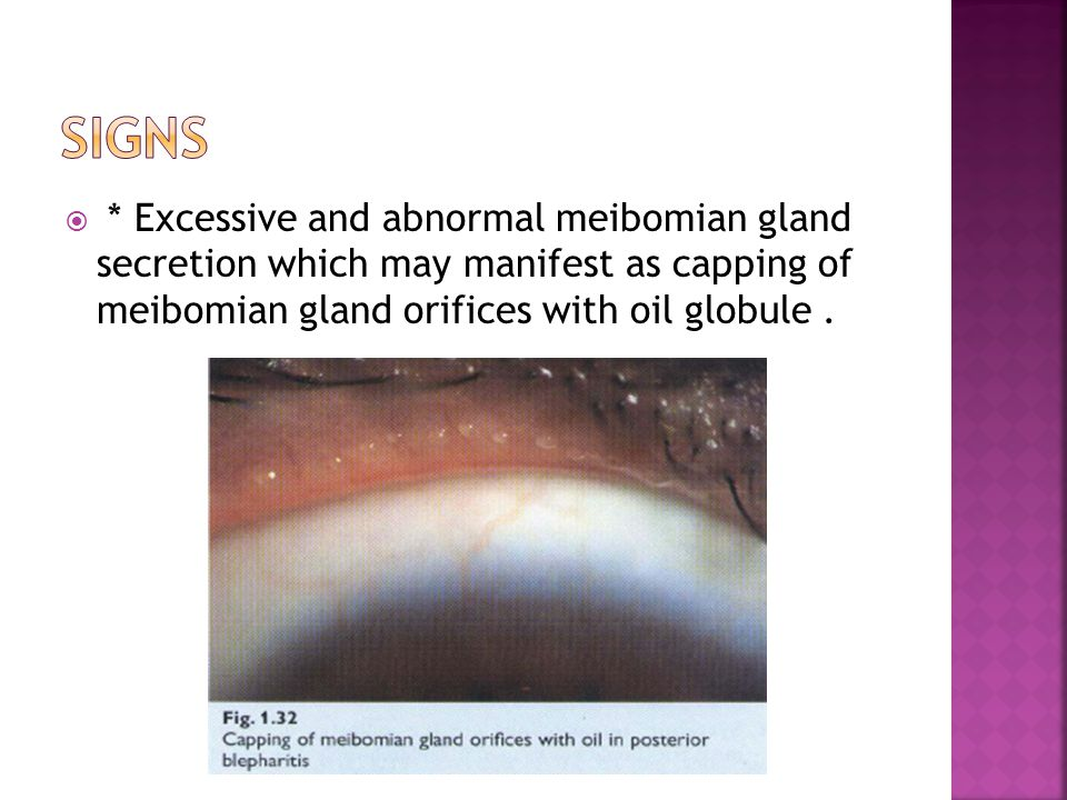 Signs * Excessive and abnormal meibomian gland secretion which may manifest as capping of meibomian gland orifices with oil globule .