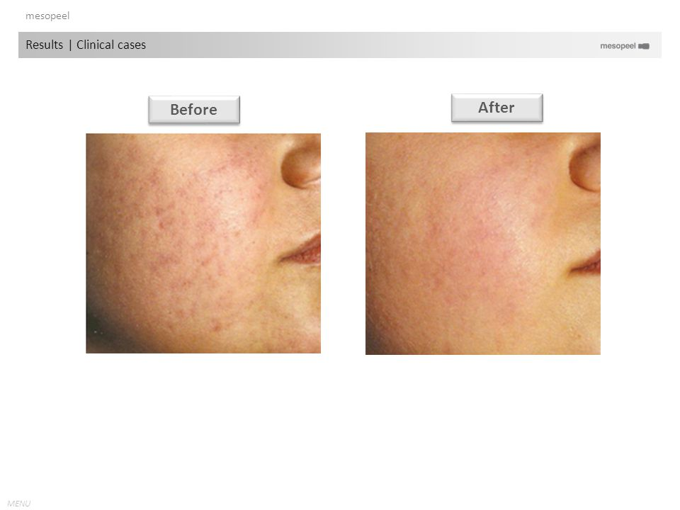 mesopeel Results | Clinical cases Before After
