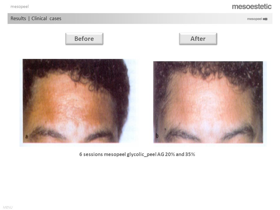 Before After Results | Clinical cases