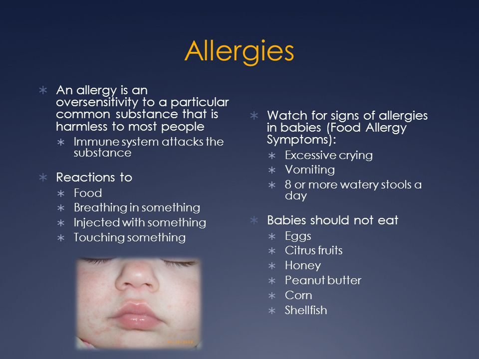 Allergies An allergy is an oversensitivity to a particular common substance that is harmless to most people.