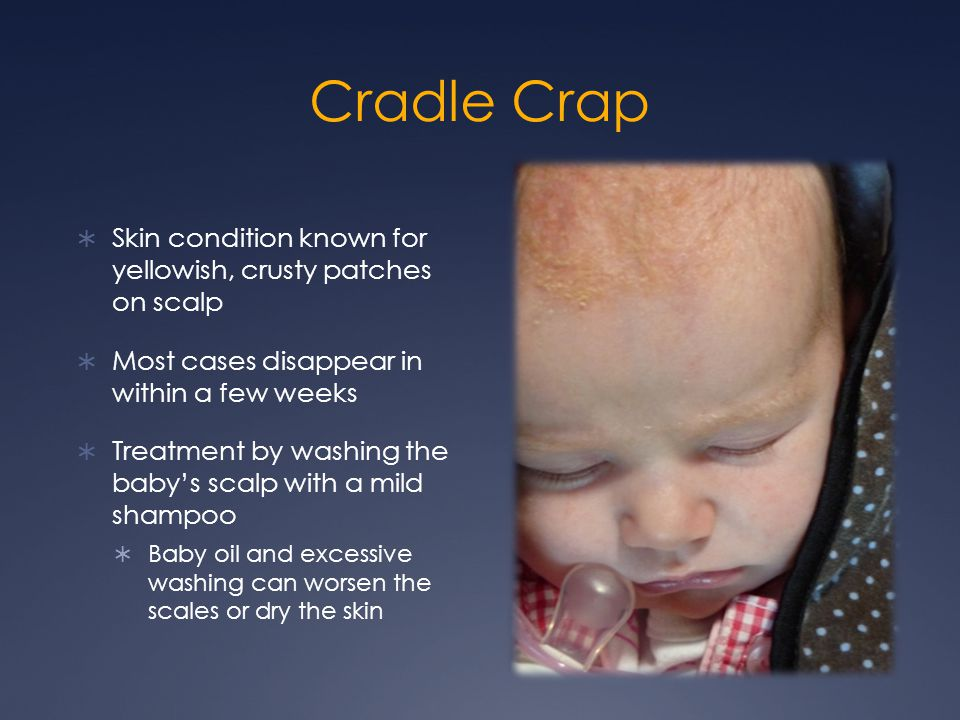 Cradle Crap Skin condition known for yellowish, crusty patches on scalp. Most cases disappear in within a few weeks.