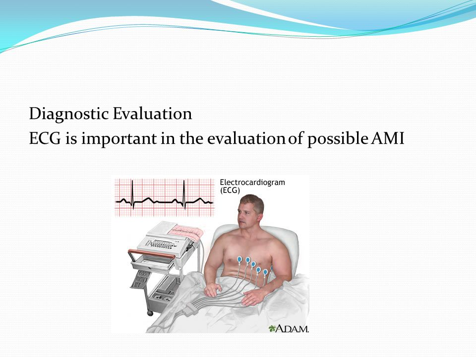 Diagnostic Evaluation ECG is important in the evaluation of possible AMI