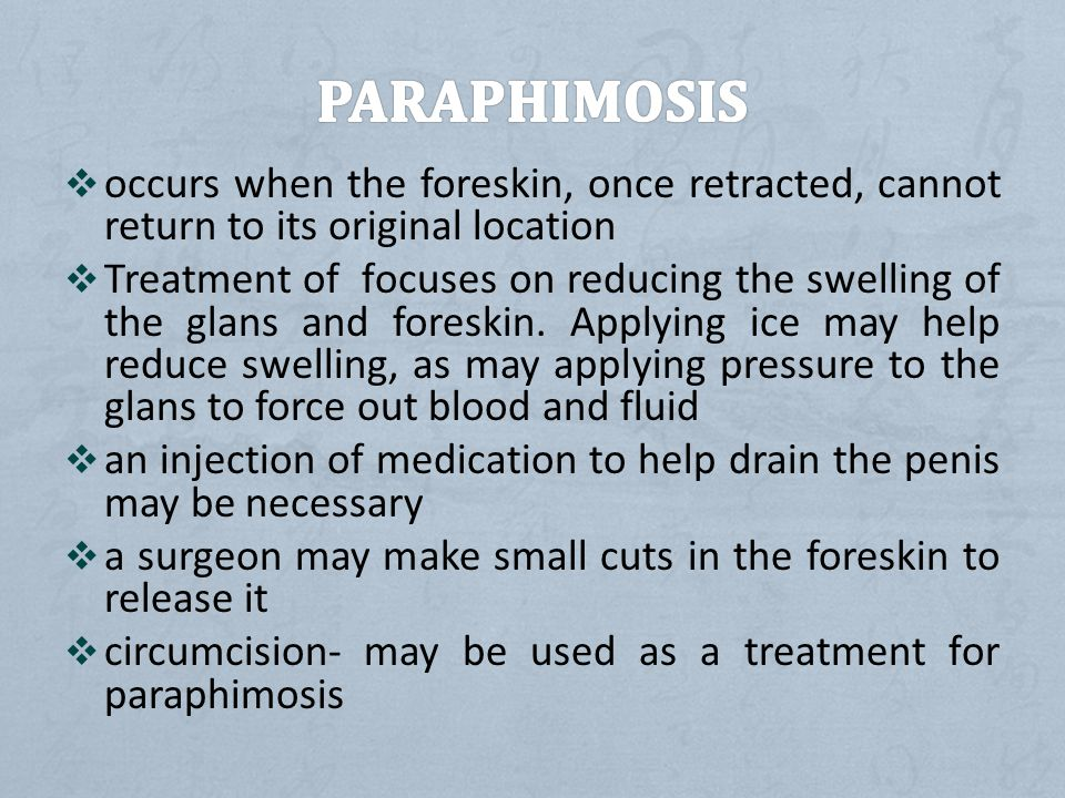 PARAPHIMOSIS occurs when the foreskin, once retracted, cannot return to its original location.