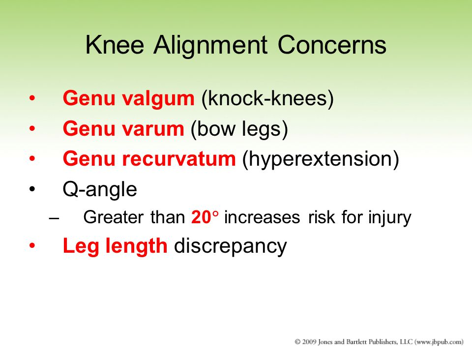 Knee Alignment Concerns