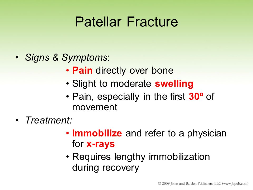 Patellar Fracture Signs & Symptoms: Pain directly over bone