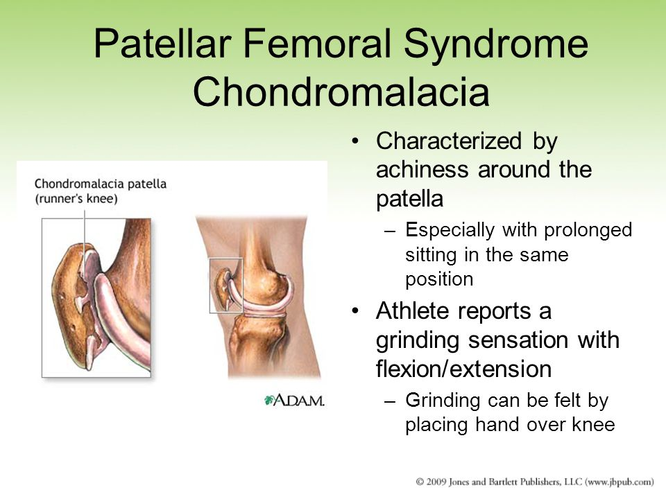 Patellar Femoral Syndrome Chondromalacia