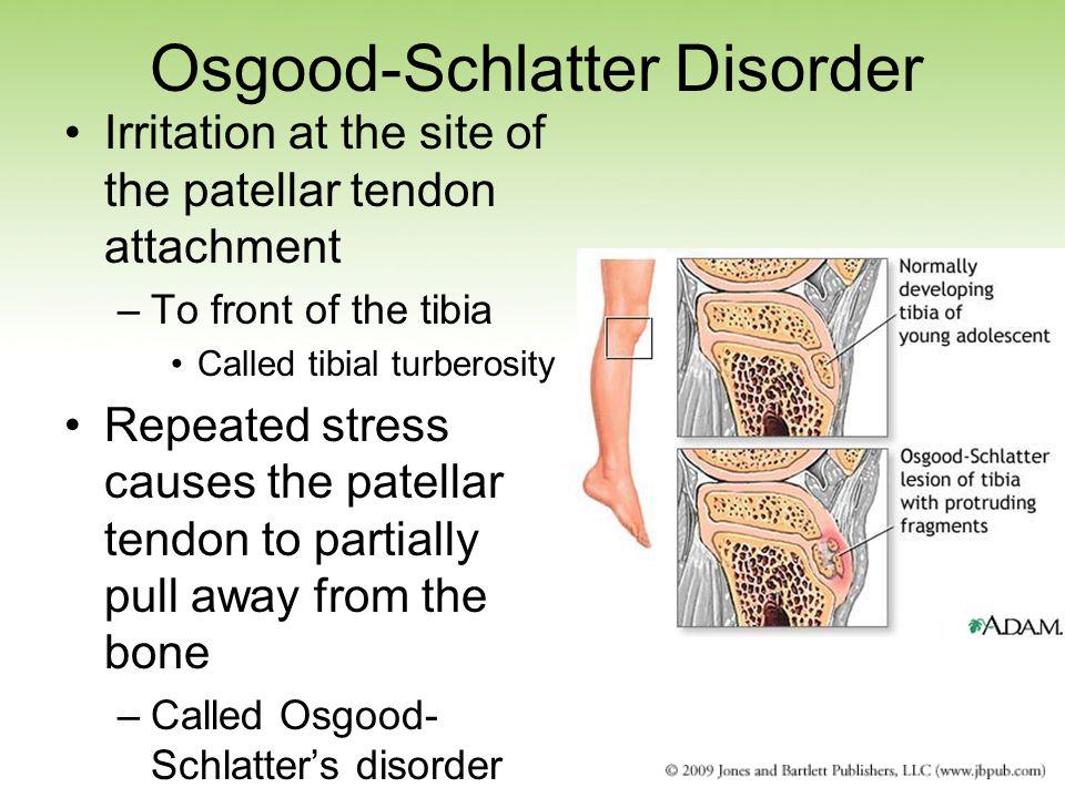 Osgood-Schlatter Disorder