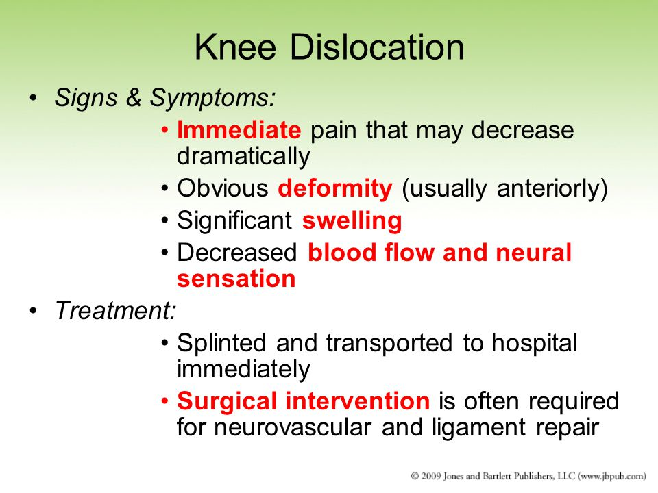 Knee Dislocation Signs & Symptoms: