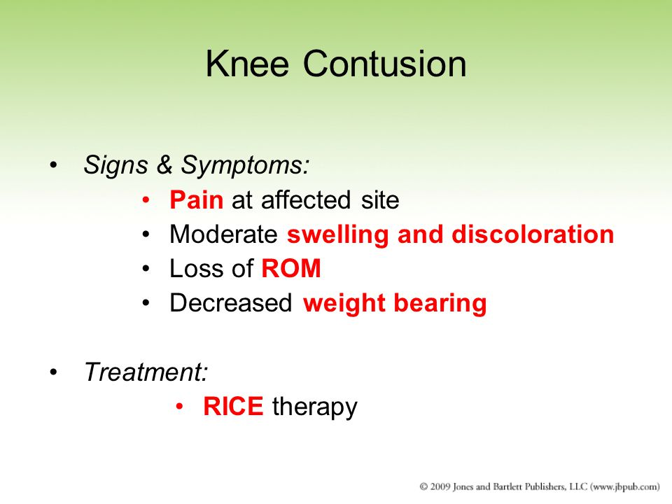 Knee Contusion Signs & Symptoms: Pain at affected site