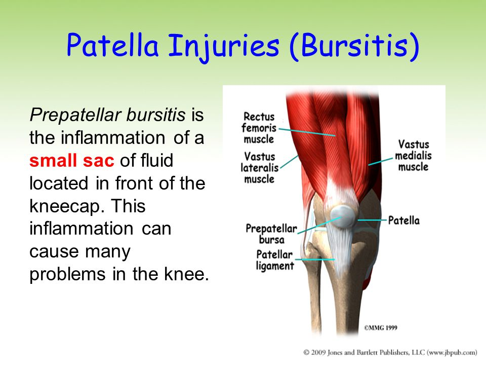 Patella Injuries (Bursitis)