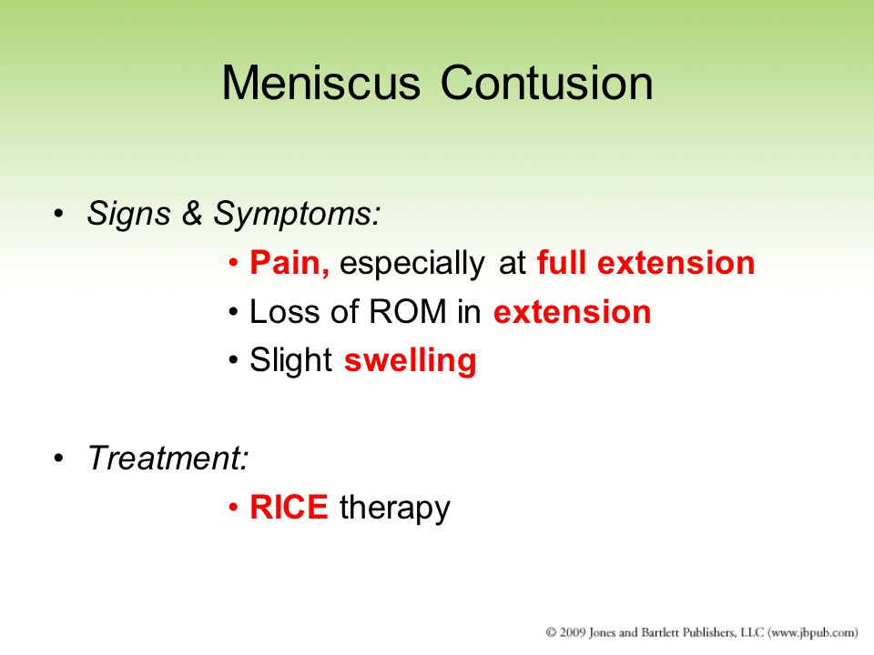 Meniscus Contusion Signs & Symptoms: