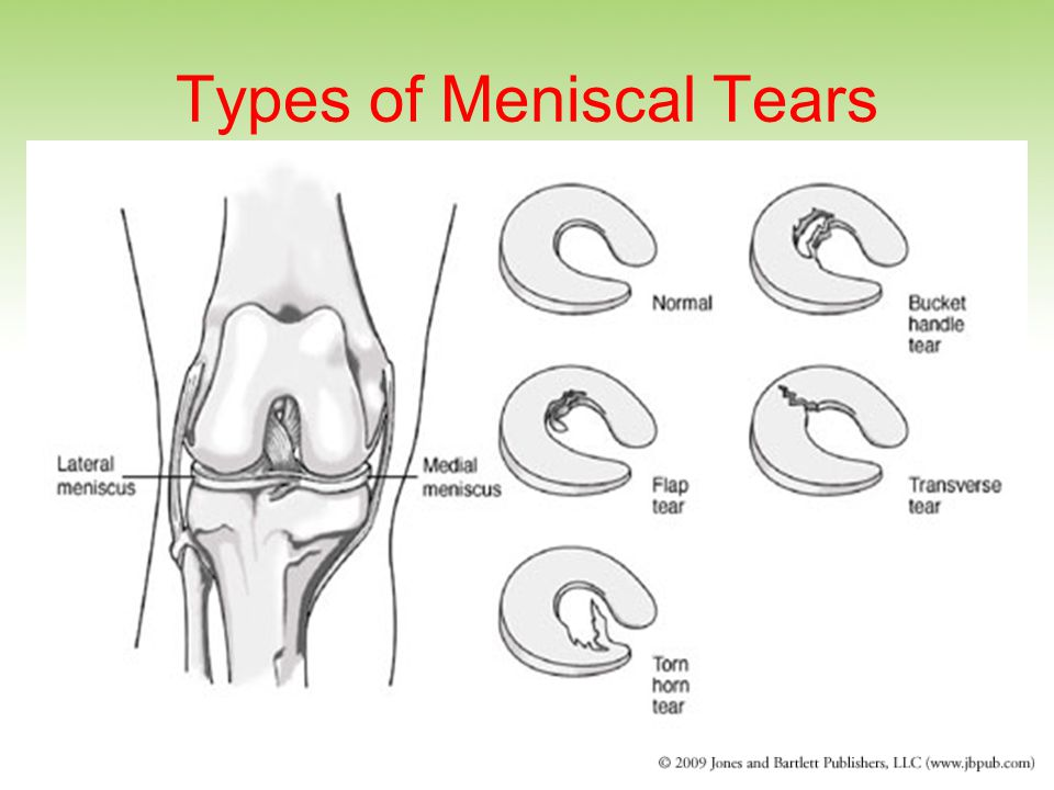 Types of Meniscal Tears