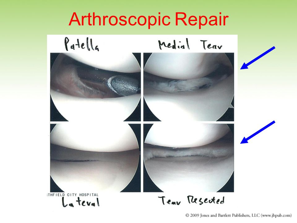 Arthroscopic Repair