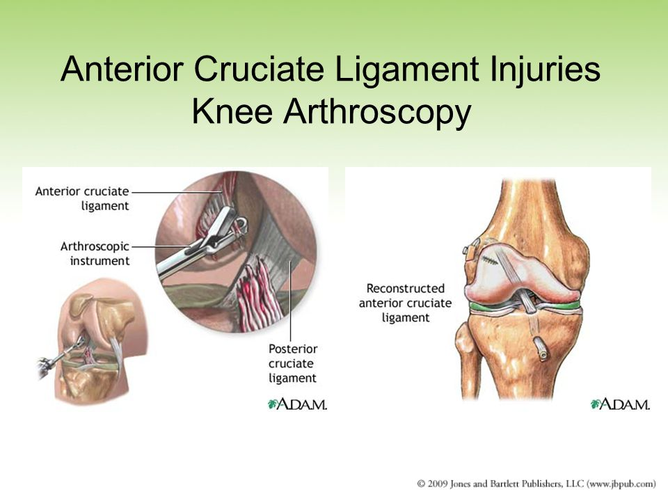 Anterior Cruciate Ligament Injuries Knee Arthroscopy