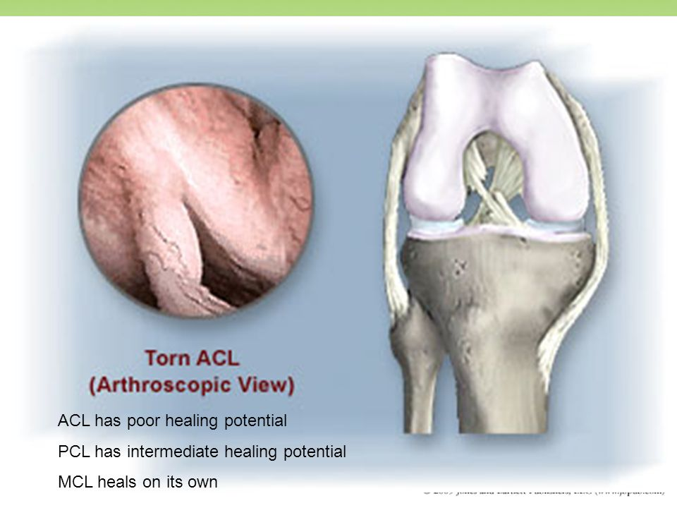 ACL has poor healing potential