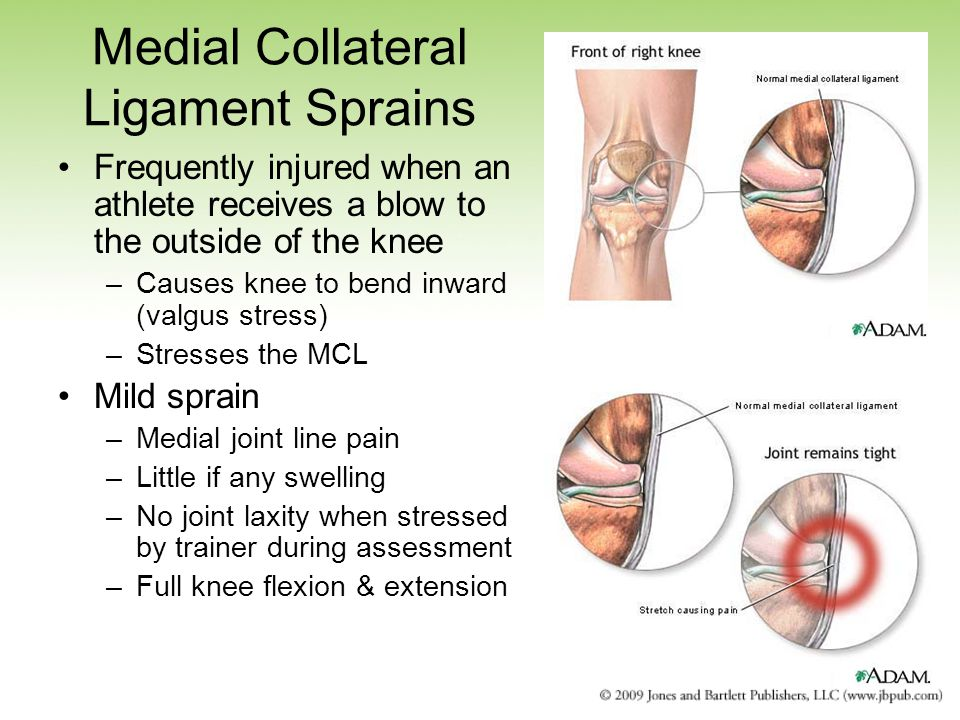 Medial Collateral Ligament Sprains