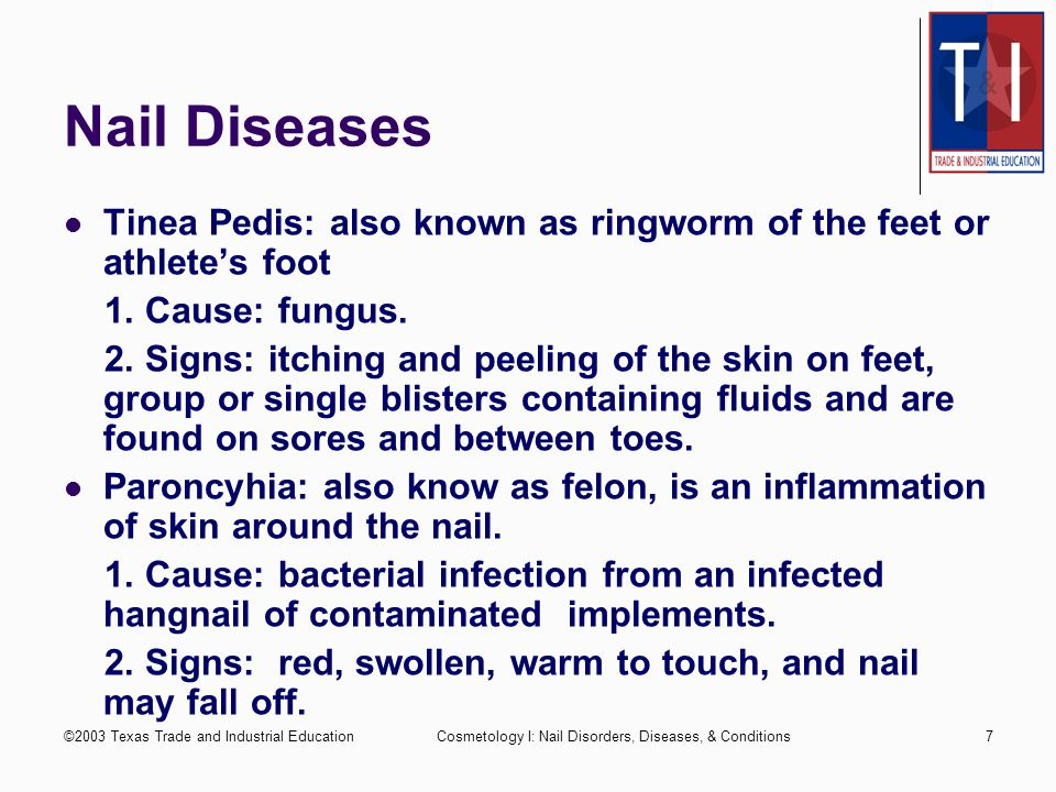 Nail Diseases Tinea Pedis: also known as ringworm of the feet or athlete's foot. 1. Cause: fungus.
