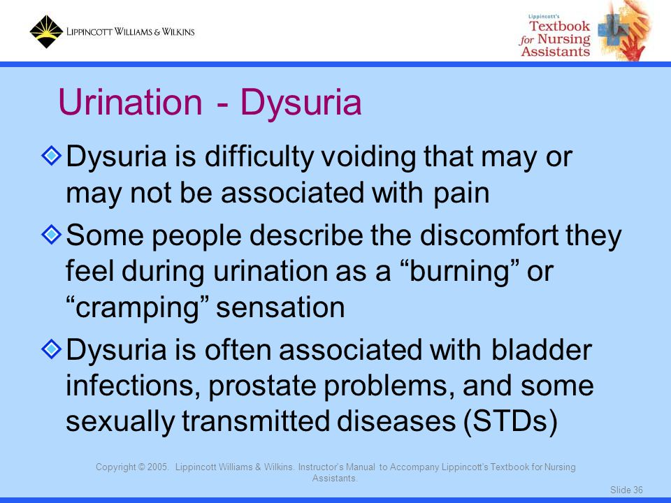 Urination - Dysuria Dysuria is difficulty voiding that may or may not be associated with pain.