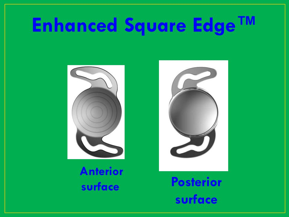 Enhanced Square Edge™ Anterior surface Posterior surface