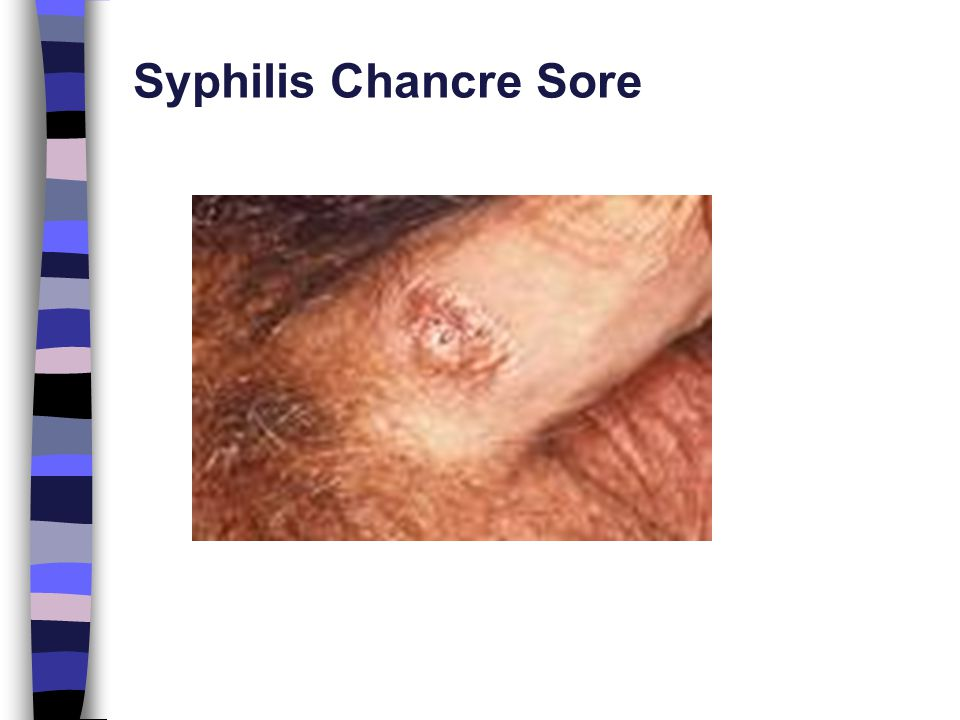 chancre sore Syphilis