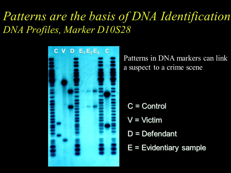 Patterns are the basis of DNA Identification DNA Profiles, Marker D10S28
