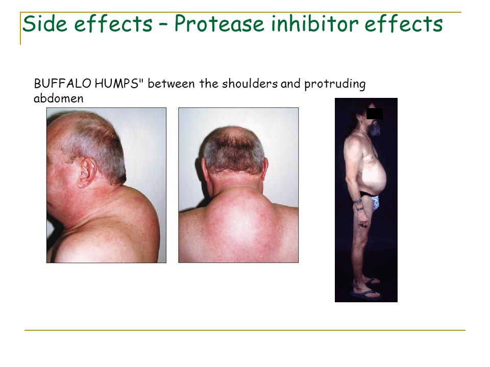 Side effects – Protease inhibitor effects