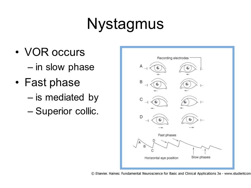 Nystagmus VOR occurs Fast phase in slow phase is mediated by