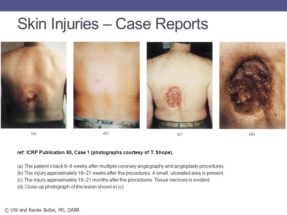 Skin Injuries – Case Reports