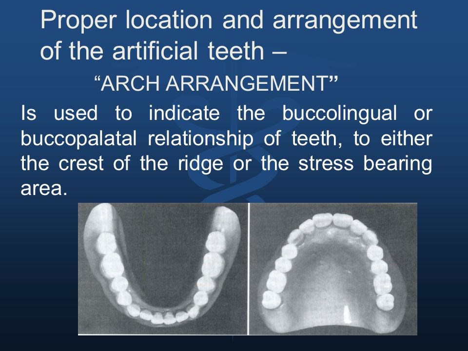 Proper location and arrangement of the artificial teeth –