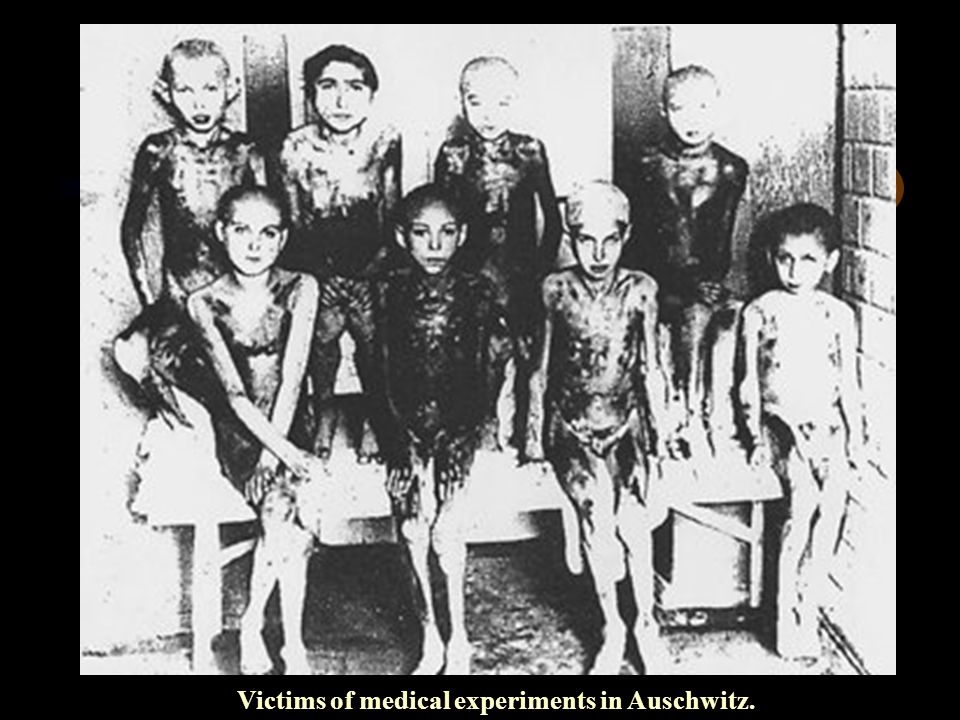 Victims of medical experiments in Auschwitz.