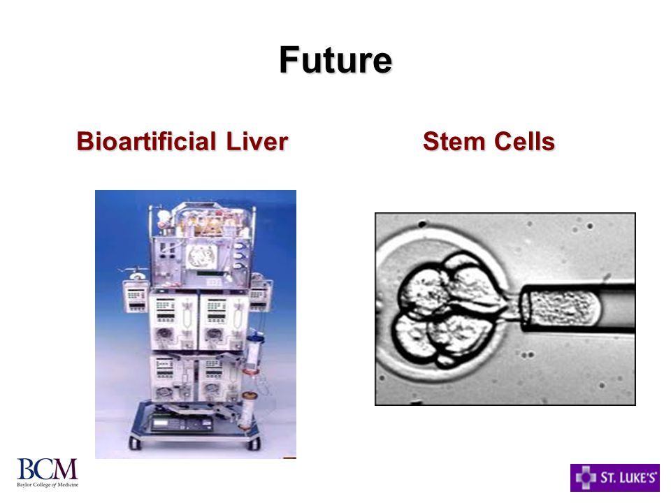 Future Bioartificial Liver Stem Cells