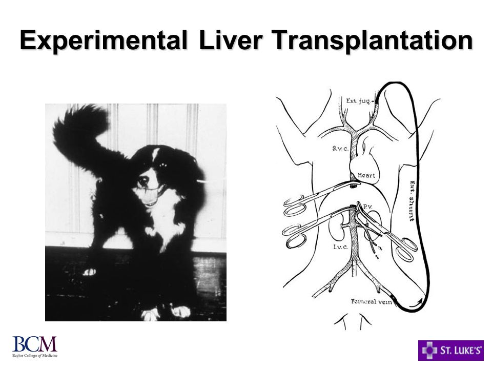 Experimental Liver Transplantation