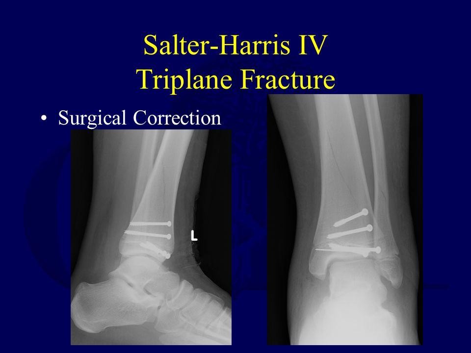 Salter-Harris IV Triplane Fracture