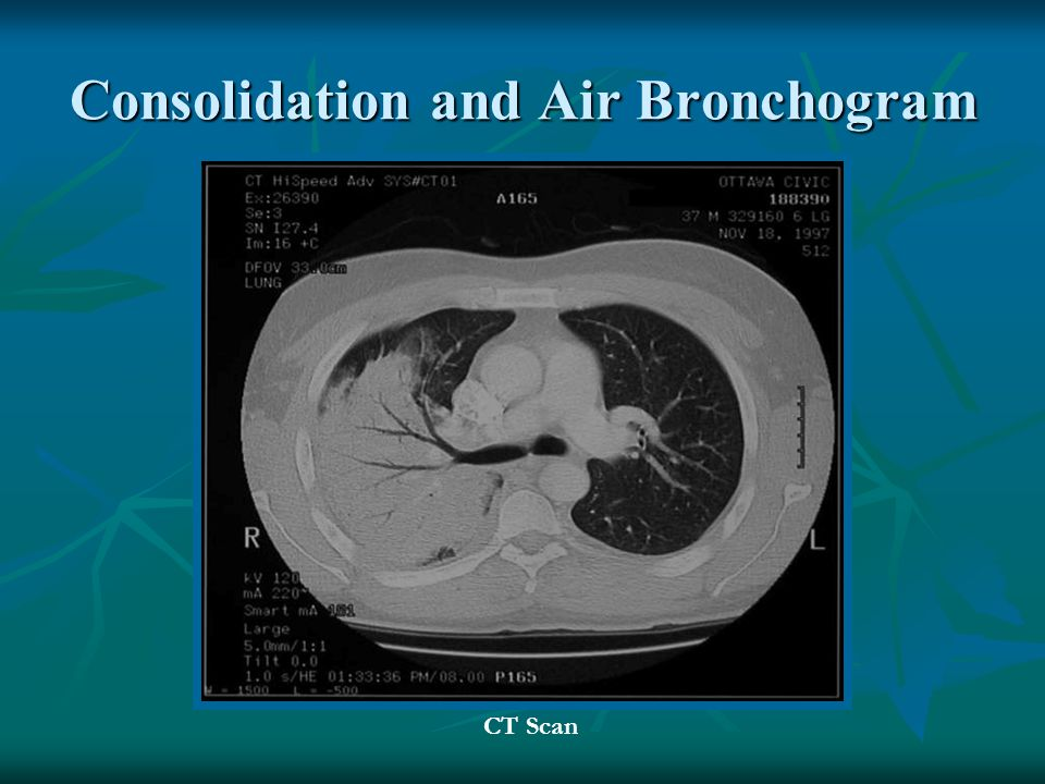 Consolidation and Air Bronchogram