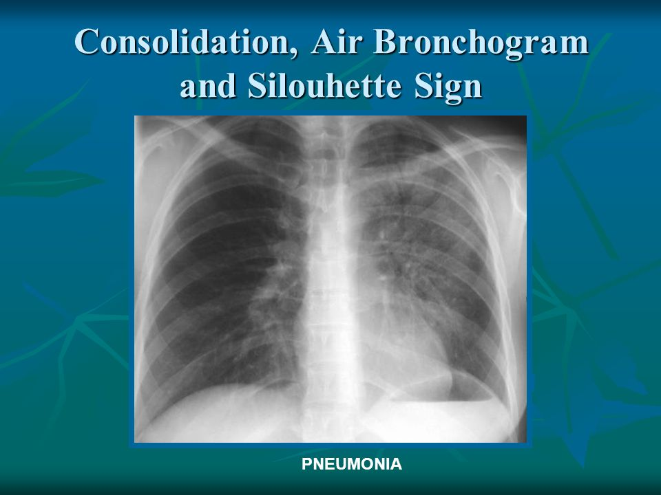 Consolidation, Air Bronchogram and Silouhette Sign